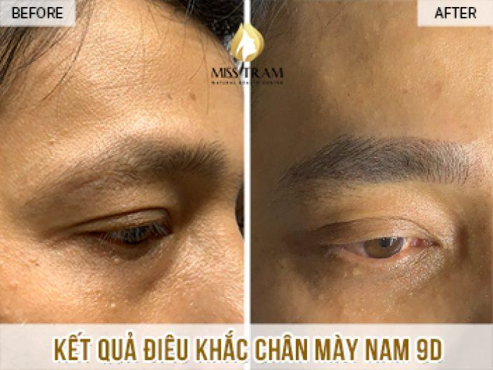 Result Of Male Eyebrow Sculpture For Anh Loc