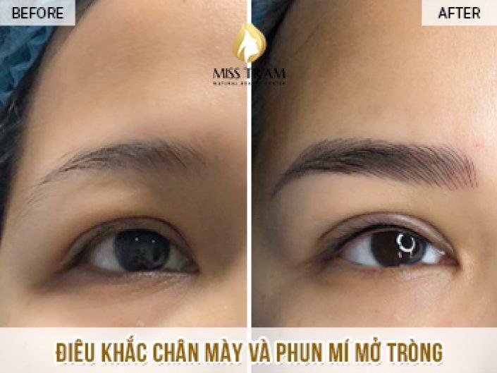 Điêu Khắc Chân Mày Và Phun Mí Mở Tròng Cho Chị Trinh tại Miss Tram Spa