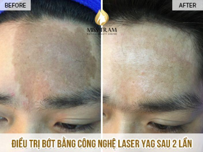 The result of eliminating traces after 2 times for him is strong by Yag laser technology