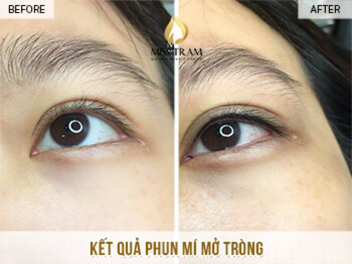 Results of Open Eyelid Spray For Mrs. Trang