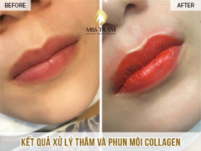 Result of Collagen Remediation and Lip Spray For Ms. Quynh Chi