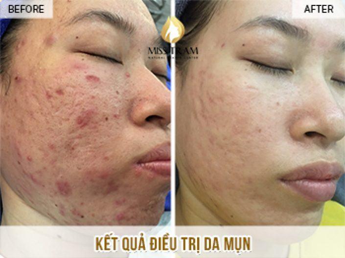 Kết Quả Điều Trị Da Mụn Và Cải Thiện Sẹo Rỗ Cho Chị Thanh Hương Tại Miss Tram Natural Beauty Center