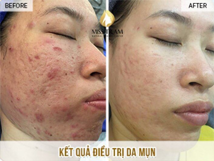 Acne Skin Treatment Results And Improving Pitted Scar For Ms. Thanh Huong