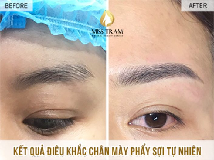 Results of Treatment and Regeneration of Eyebrows for Ms. Nga