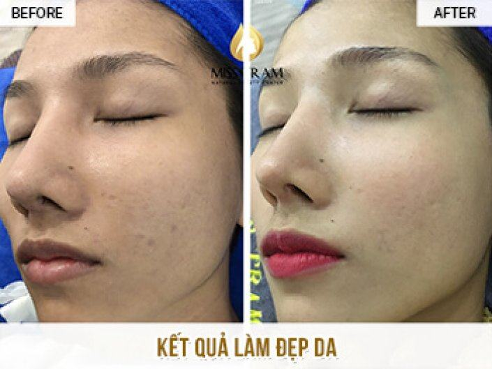 Improving Brightness And Skin Beauty For Ms. Quynh Nhi At Miss Tram
