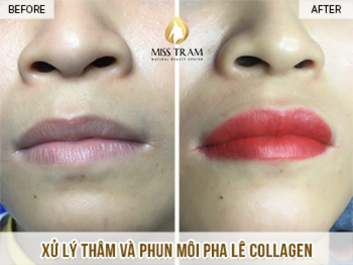 Results of Intensive Treatment and Lip Collagen Spray for Ms. Mai