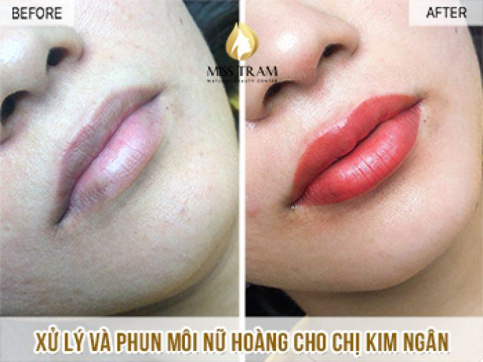 Treating And Spraying Lips Queen For Ms. Kim Ngan