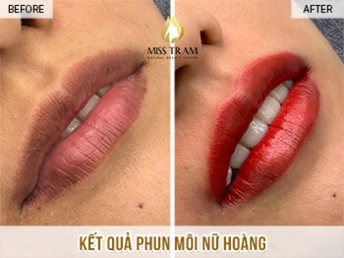 Result of Spraying Lips Queen For Sister Trang