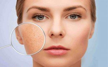 Proper Care For Oily Skin With Large Pores