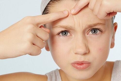 sai lầm khi makeup khiến làn da nổi mụn