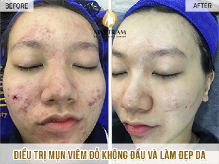 Treating Headless Acne Treatment And Skin Beauty For Baby Minh Ngoc
