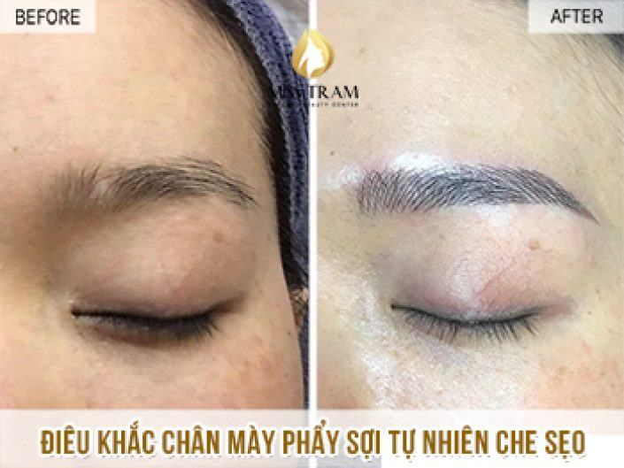 Covering Scar On Ha's Eyebrows With The Sculpting Sculpting Method