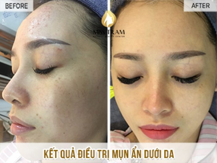 Treating the Hidden Skin Acne Form for Ms. Kim Ha
