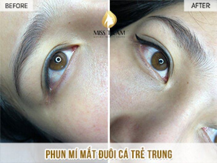 Spraying Young Fishtail Eyelid For Ms. Thanh