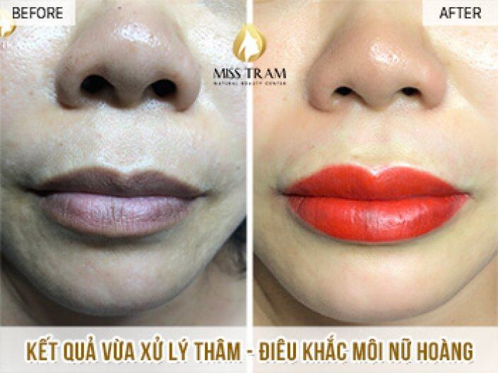 Treatment and Sculpture of Queen's Lip For Ms. Ha