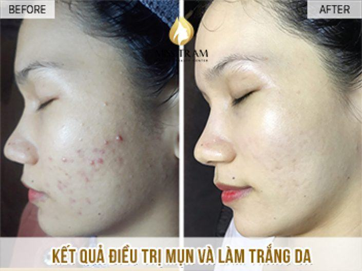 Acne Treatment And Brightening Skin For Thien
