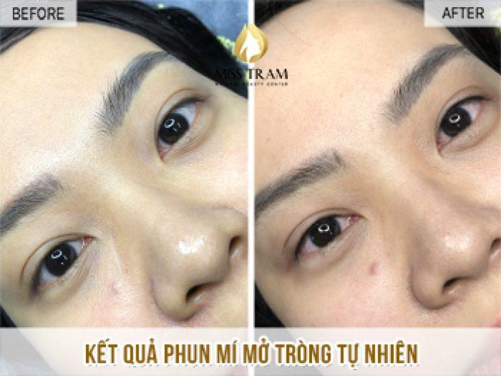 The results of natural eyelid spraying for Lien