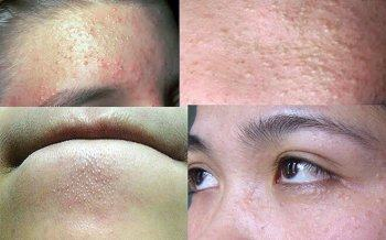 Acne Should Eat, Avoid What