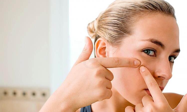 không tự ý nặn mụn cách phụ hồi da mặt tổn thương
