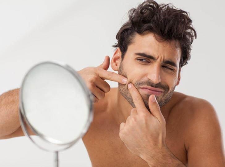 chăm sóc da mụn cho nam giới đúng cách là không nên tự ý nặn mụn