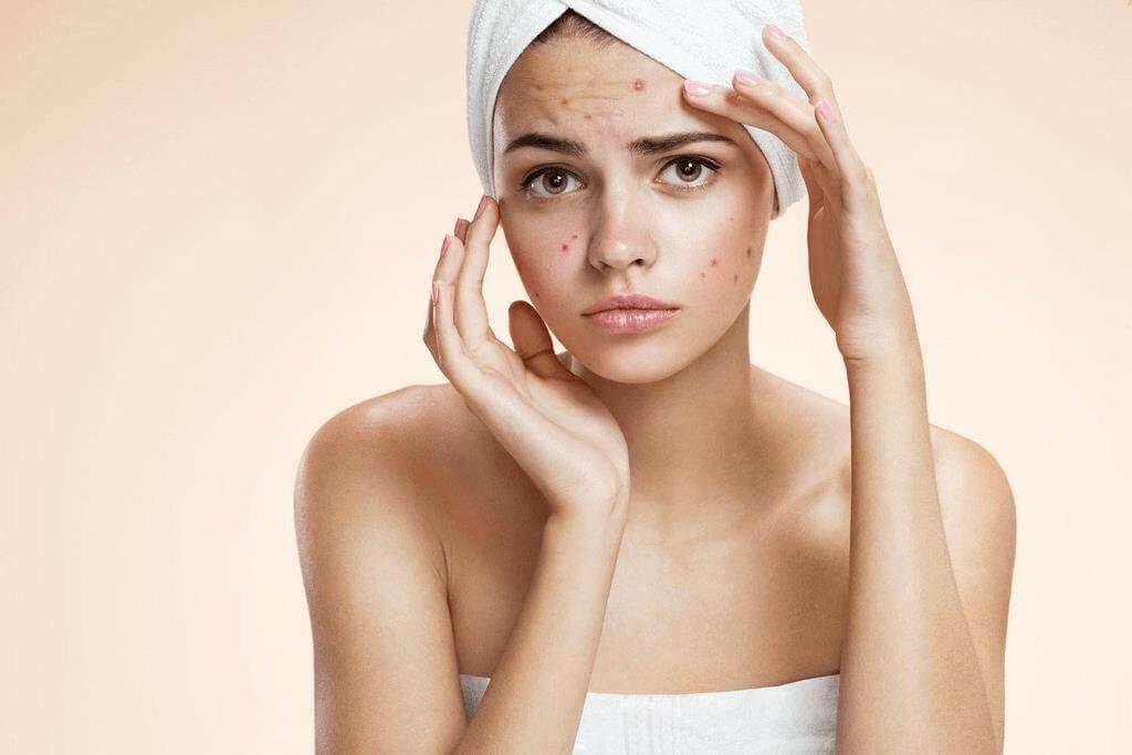 mụn nguyên nhân da mặt bị tồn thương