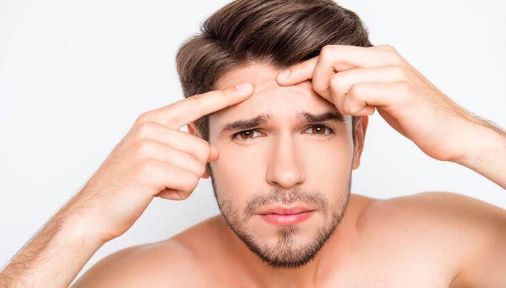 chăm sóc da mụn cho nam giới thế nào cho hiệu quả