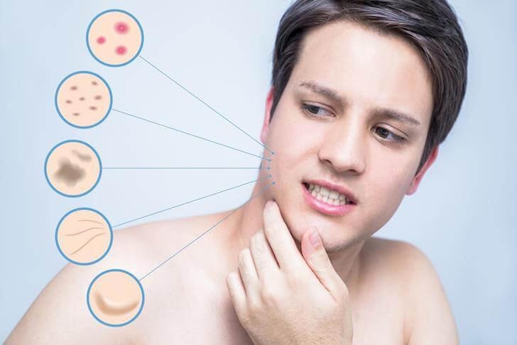cách chăm sóc da mụn cho nam giới do nội tiết tố