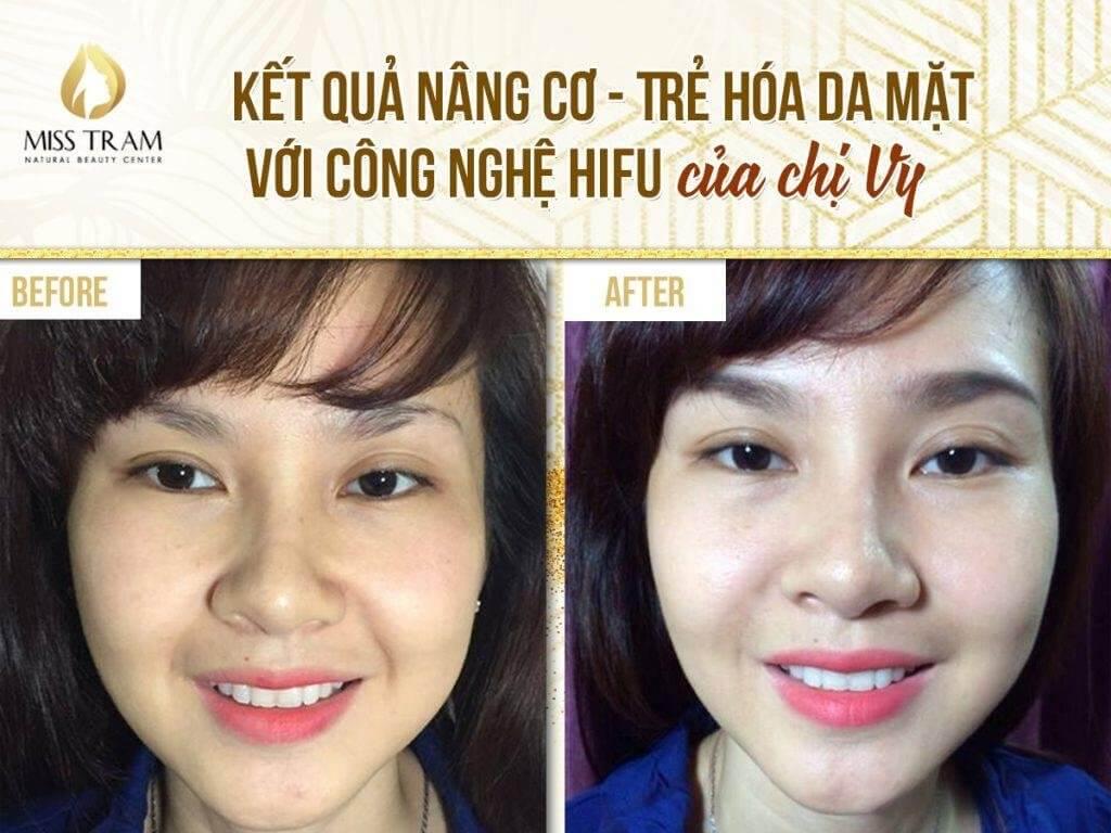 thẩm mỹ viện khắc phục da mặt bị chảy xệ uy tín