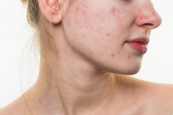 tại sao chúng ta cần quy trình các bước dưỡng da cho da mụn