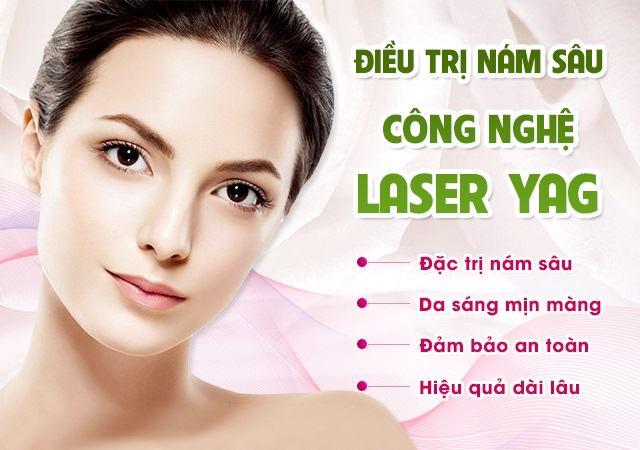 Công nghệ trị nám tận gốc Laser YAG