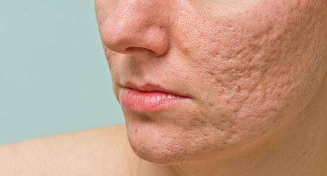 Da mặt bị sẹo rỗ