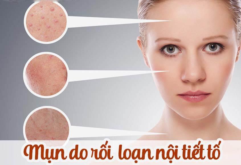 rối loan nội tiết tố gây mụn bọc ở mũi