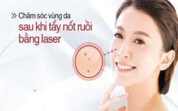 Kinh Nghiệm Chăm Sóc Da Sau Tẩy Nốt Ruồi Bằng Laser