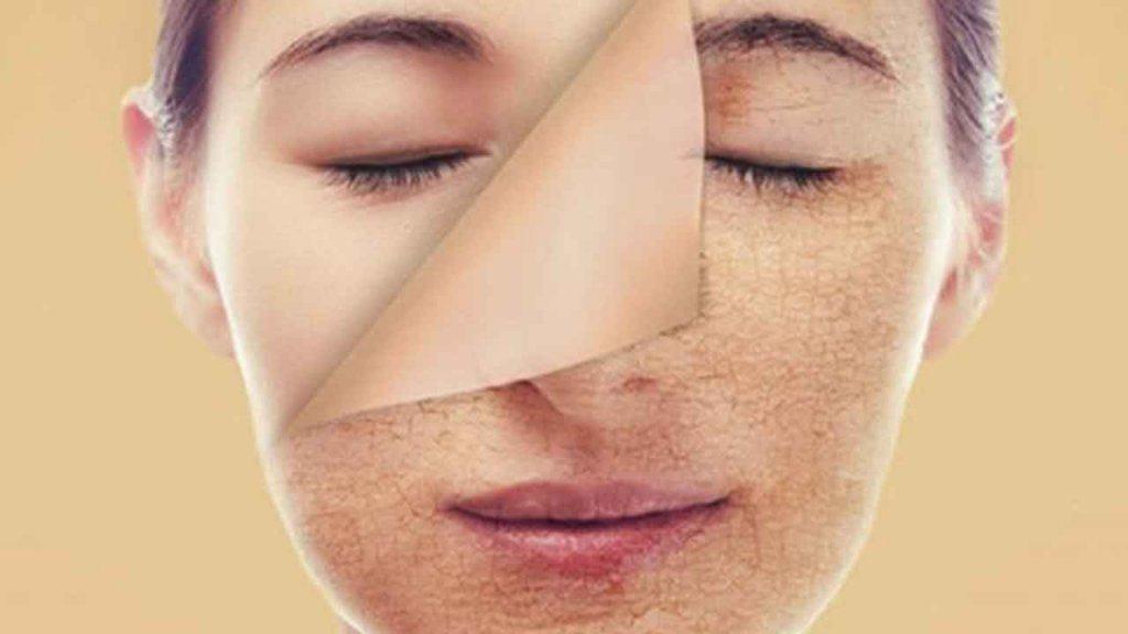 Thải độc da là gì? Những lợi ích khi thải độc da mang lại?