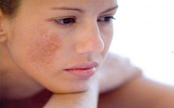 Tracing The Causes Of Middle-Aged Women To Be Freckled