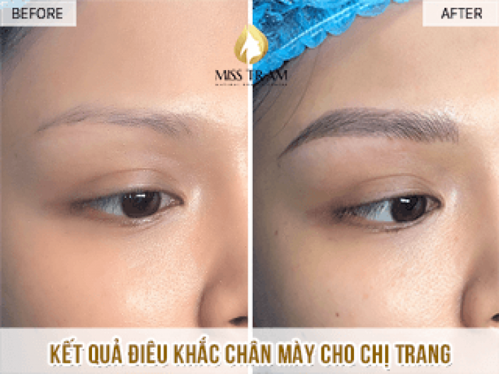 Fixing Sister Trang's Eyebrows With Sculpting Technology