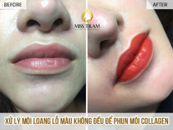 Treatment of lips and pores with Ink Toner Collagen Queen