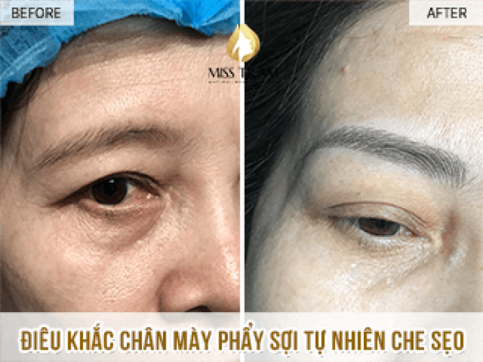 Sculpting eyebrows - covering scars for Ms. Phuong
