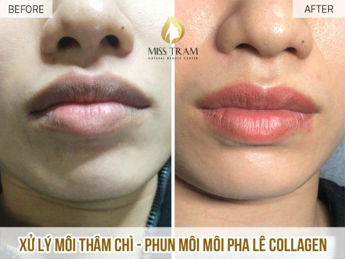 Treatment of leaded lips - Sprayed with natural orange pink collagen crystal lips for Ms. Tuyen