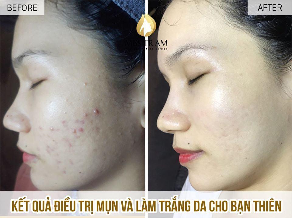 Kết quả điều trị mụn và làm trắng da cho khách