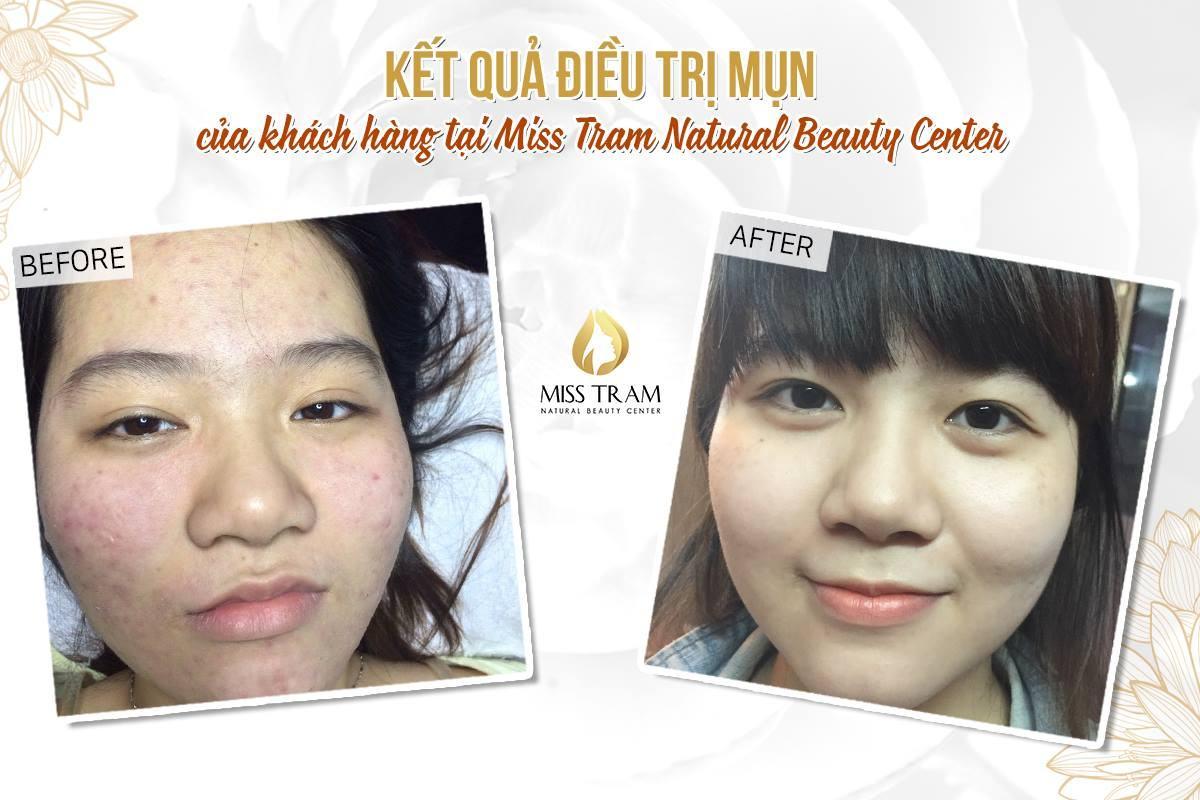 Kết quả trước và sau khi điều trị mụn cho khách hàng
