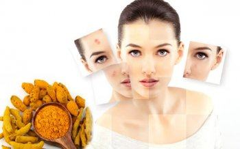 15 Home Remedy for Effective Acne from Natural Materialsaaaaaaaaaaaa
