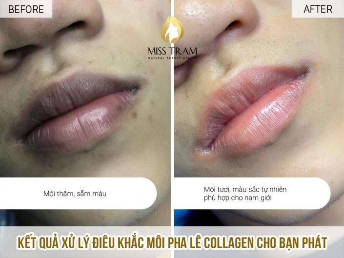 Collagen Crystal Lip Treatment Results For You Phat