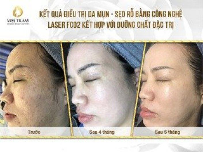 Acne Treatment, Pitted Scar For Van Anh With Fractional CO2 Laser Combined With Special Treatment