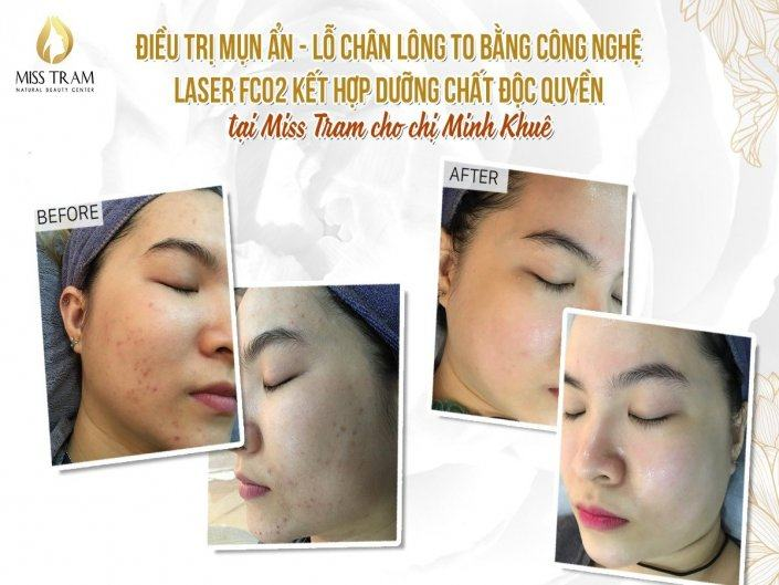 Treating Hidden Acne, Large Fractional CO2 Laser Pores