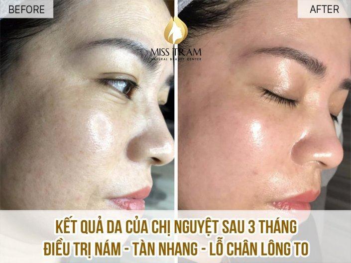 Điều Trị Nám – Tàn Nhang – Lỗ Chân Lông Cho Chị Nguyệt