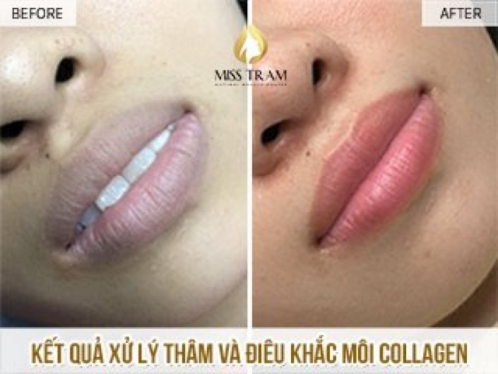 Results Of Treatment Of Dark Lips - Natural Peach Skin Collagen Sculpture