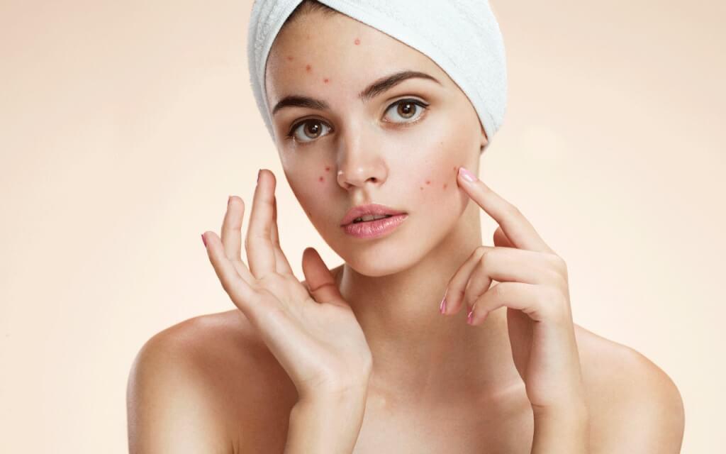 cách chăm sóc da bị mụn nội tiết tố an toàn và hiệu qảu nhất hiện nay