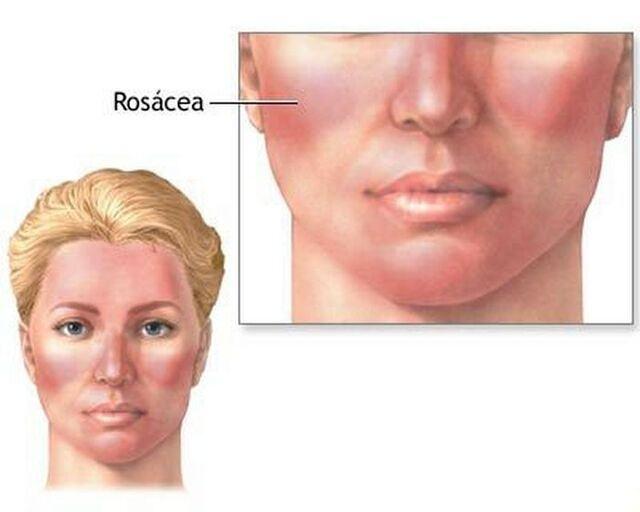 bệnh Rosacea