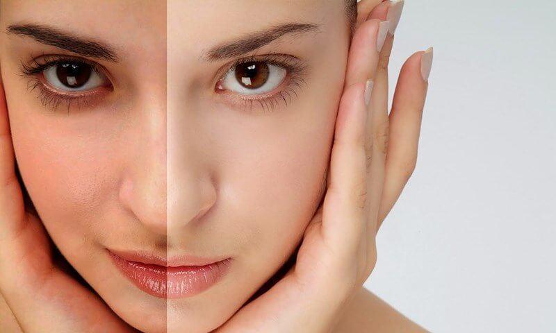 những nguyên nhân khiến làn da bị xỉn màu cà cách khắc phục hiệu quả